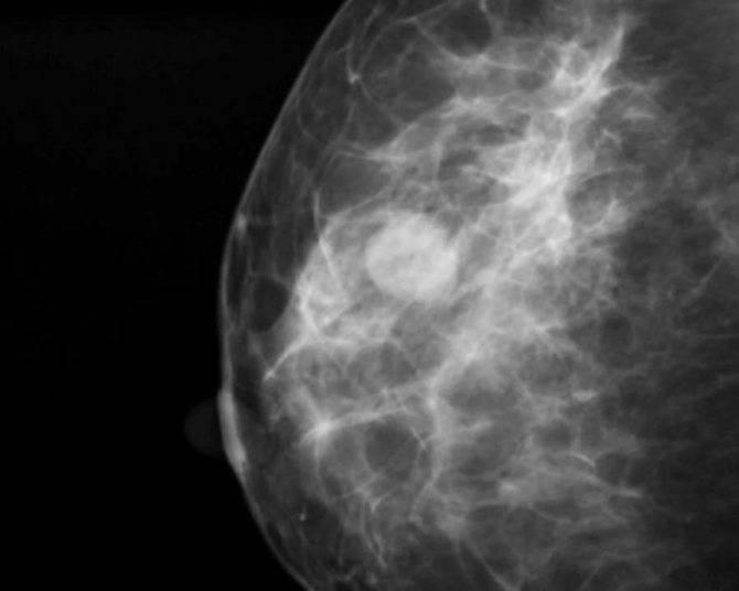 Cимптомы фиброзно-кистозной мастопатии молочных желез и как лечить заболевание