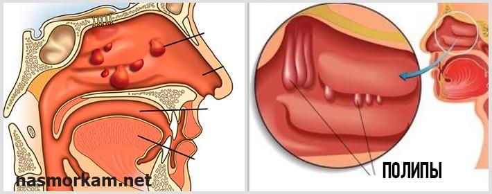 Полипы в носу лечение без операции