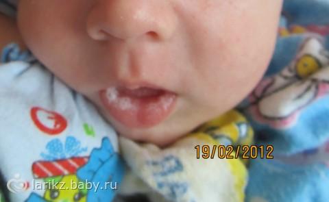 Причины появления мозоли на губе у новорожденного