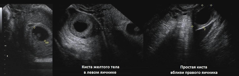 Киста желтого тела при беременности на ранних