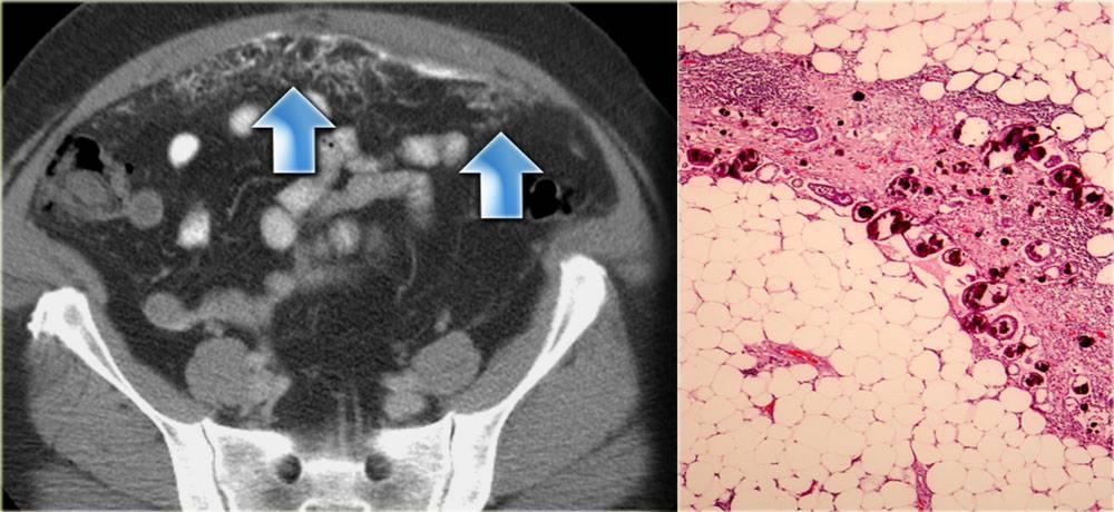 Причины, лечение и симптомы рака яичников у женщин