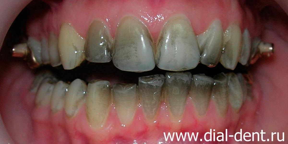 Почему на зубах у ребенка возникает налет? каких видов бывает и как от него избавиться?