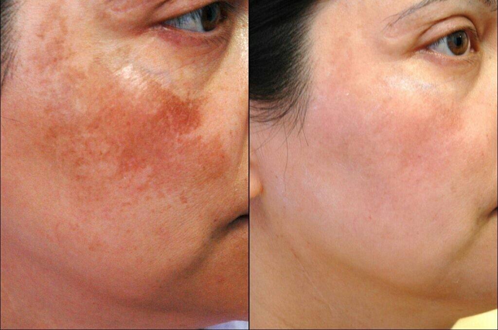 Как осветлить пигментные пятна на лице