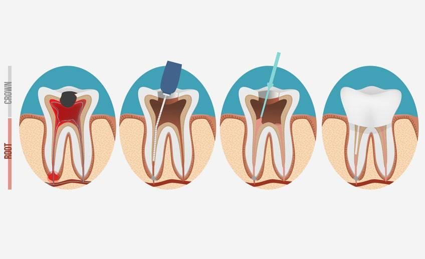 После пломбирования зуб болит и реагирует на холодное, горячее и сладкое: причины и лечение повышенной чувствительности