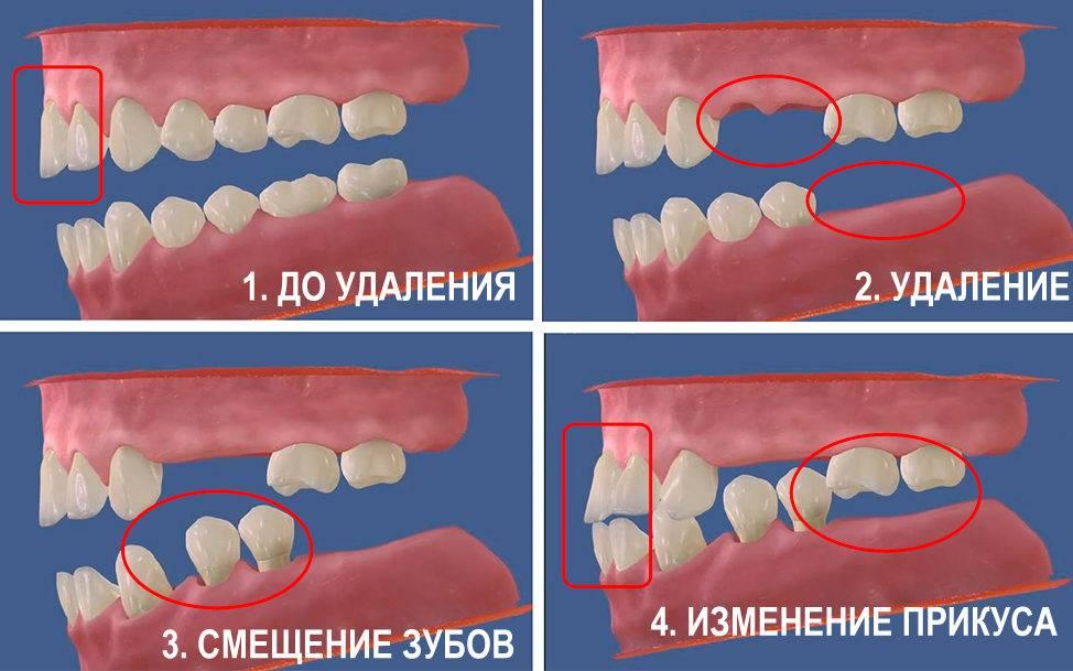 Как исправить скученность зубов