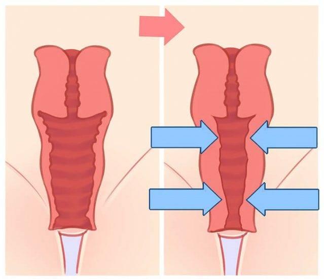 Хирургическое лечение при опущении матки: как делается операция, восстановление и последствия   отзывы женщин