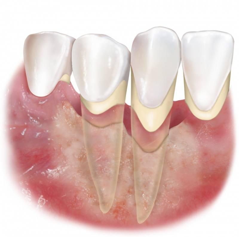 Причины воспаления десен, лечение в домашних условиях, правильный уход за полостью рта