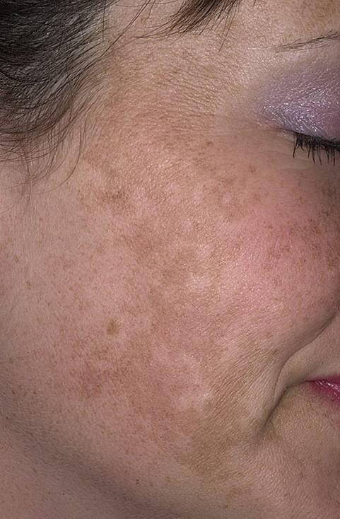 Хлоазма на лице: что это, причины, симптомы, методы лечения