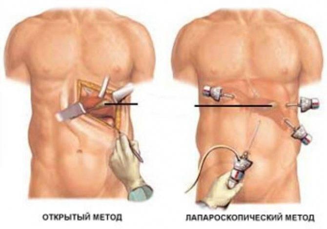 Послеоперационные спайки: причины, симптомы и лечение