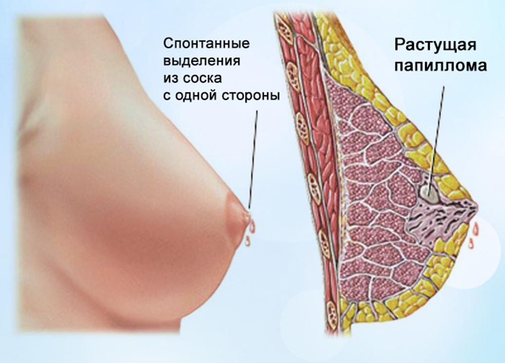 Молозивопри беременности