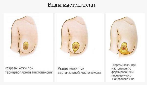 Советы, как подтянуть грудь дома: крема, тейпирование, упражнения