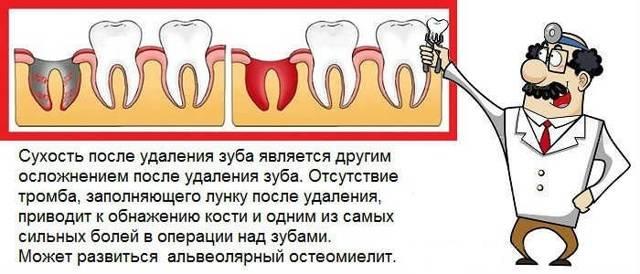 Что делать, если удалили зуб