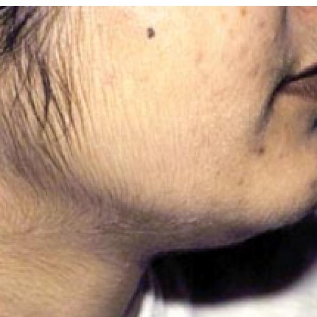 Гипертрихоз — симптомы и лечение, фото и видео