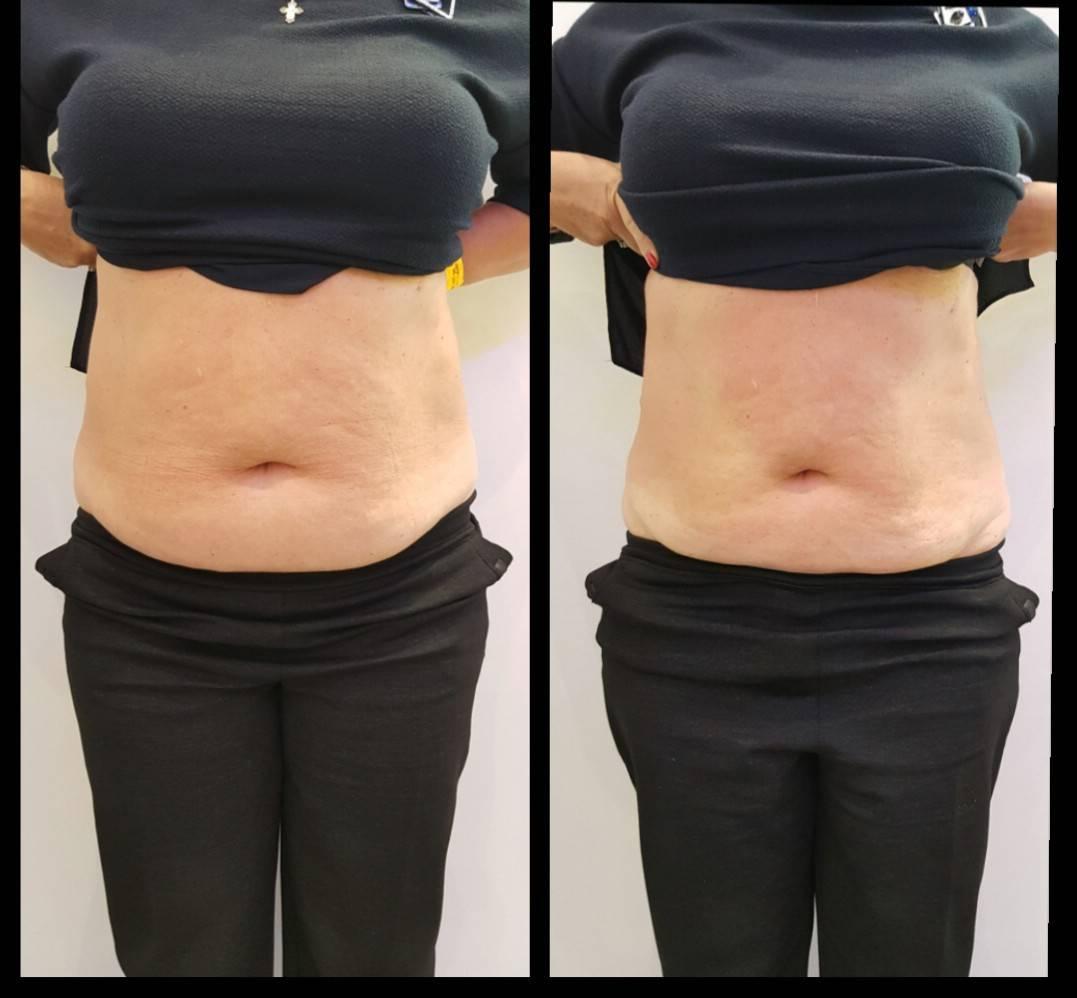 Жиросжигающие уколы для похудения