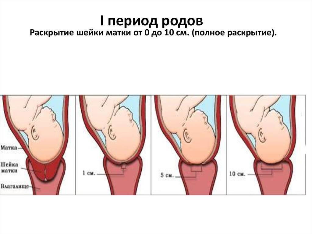 Когда рожать, если шейка матки открыта на 2 см