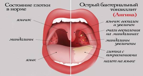 Миндалины в горле — воспаление, фото, у детей, увеличены но горло не болит