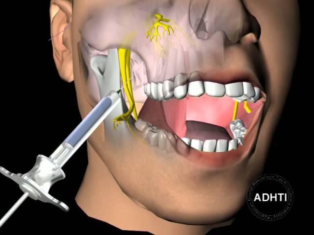 Длительность анестезии после лечения и удаления зубов