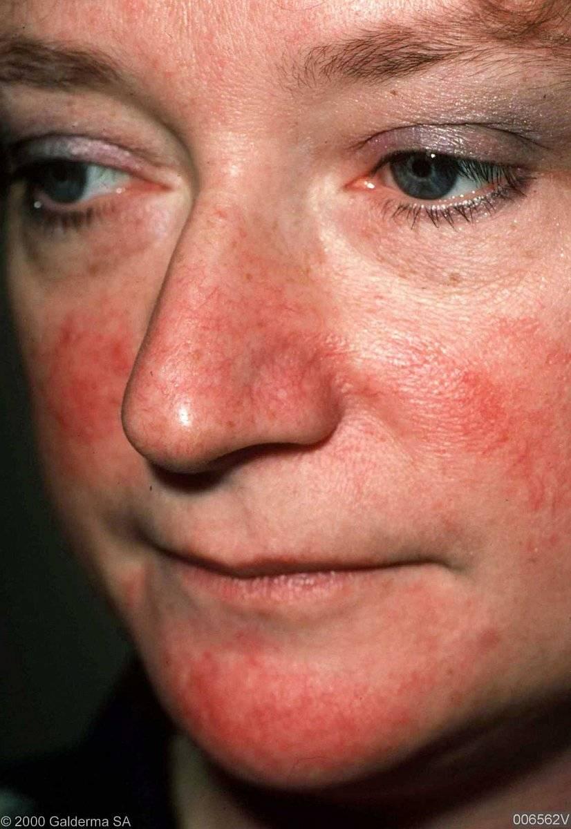 Аптечная уходовая косметика для чувствительной кожи с розацеа и куперозом.