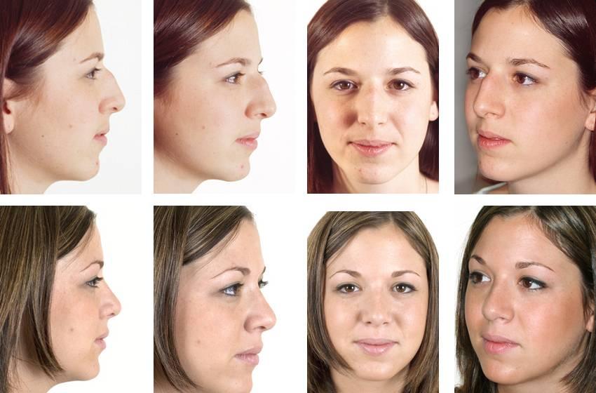 Какую операцию делать при искривлении носовой перегородки?