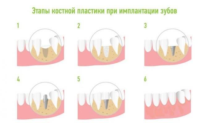 Больно ли сверлить челюсть при имплантации?