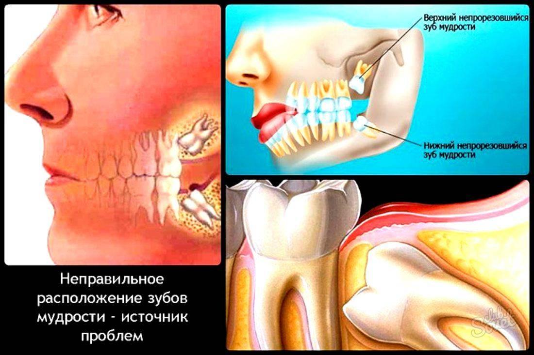 Может ли от зуба болеть голова и как эти ощущения связаны?