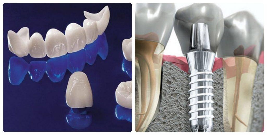 Восстановление зубов: материалы и технологии
