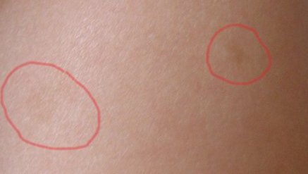 Красные шелушащиеся пятна на теле