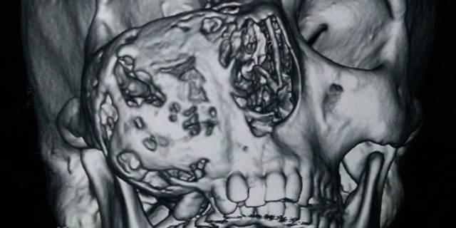 Опухоли челюстей