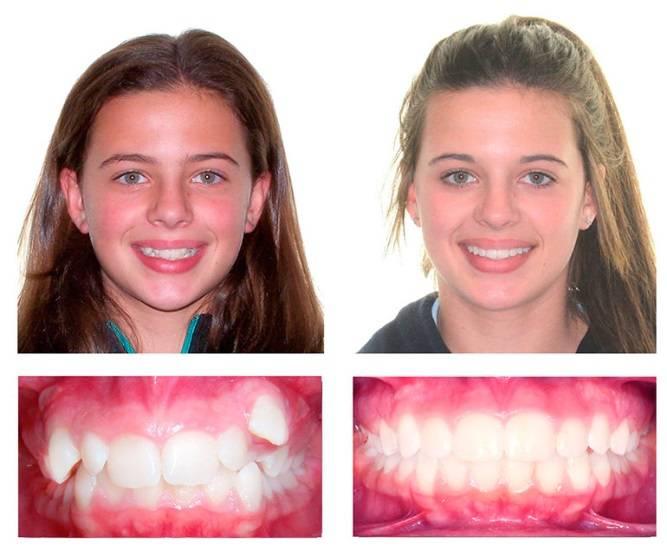 Исправляем прикус капами - сложная и простая ортодонтия