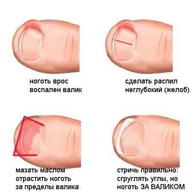 Популярные методы удаления вросшего ногтя на ноге