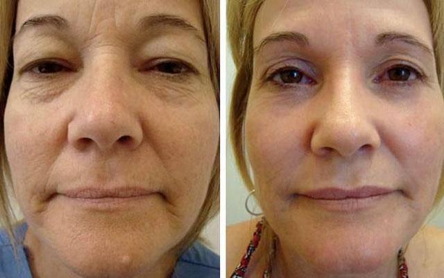 Топ процедур для кожи вокруг глаз