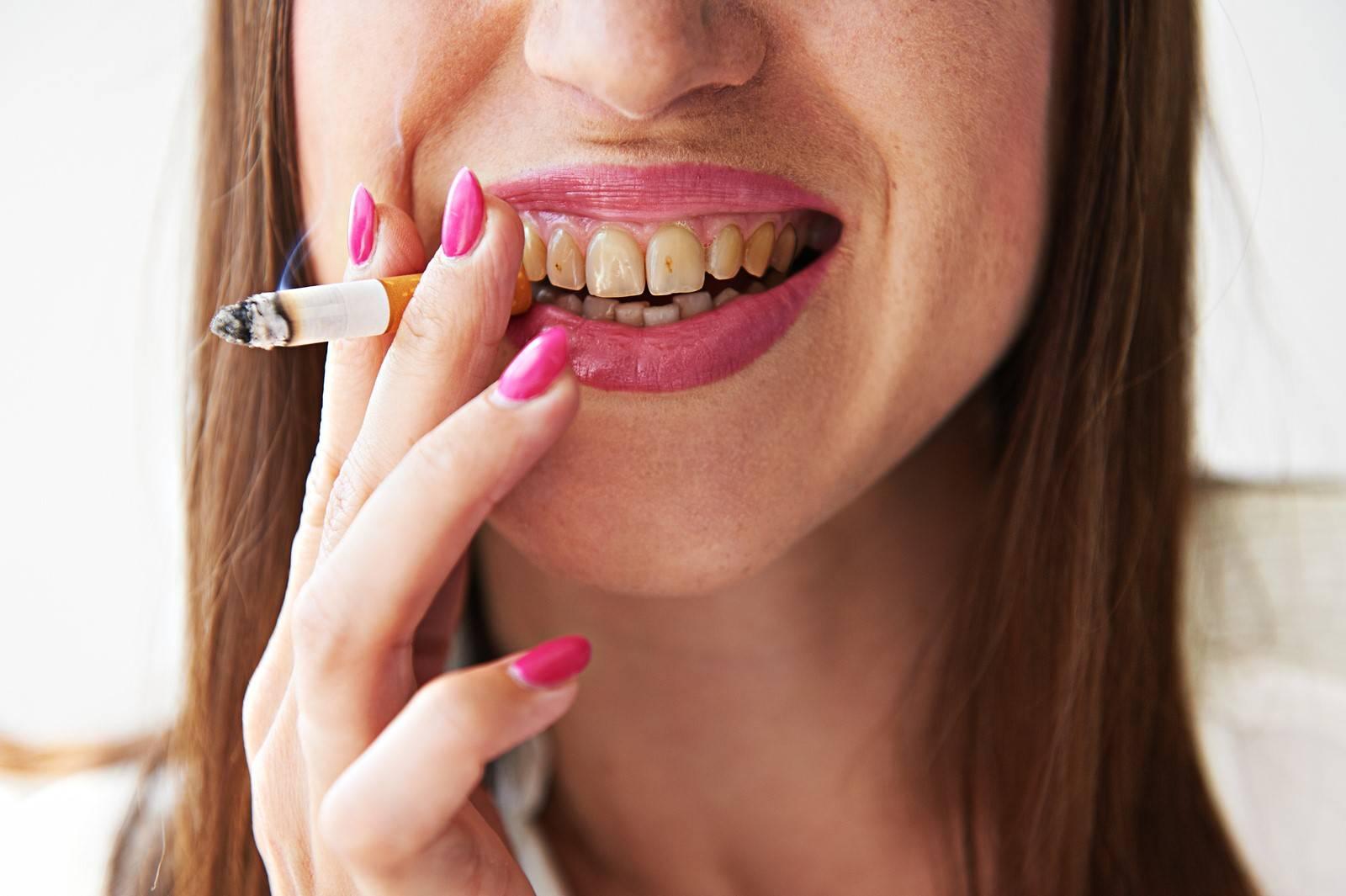 Можно ли курить после установки импланта