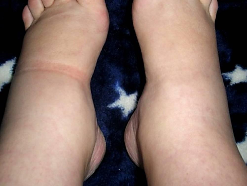 Причины, сопутствующие симптомы и лечение отека голеностопного сустава