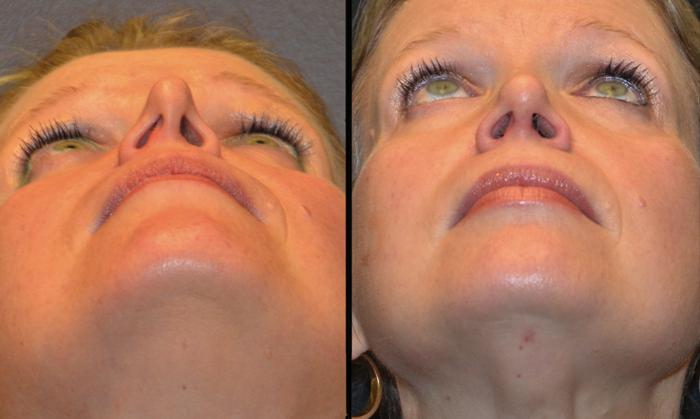 Септопластика: отзывы и восстановление носа после операции