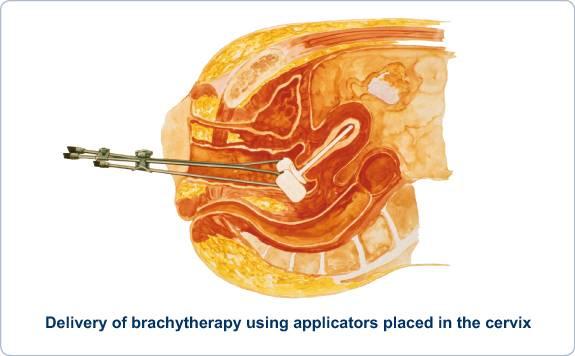 Лучевая терапия при опухоли шейки матки