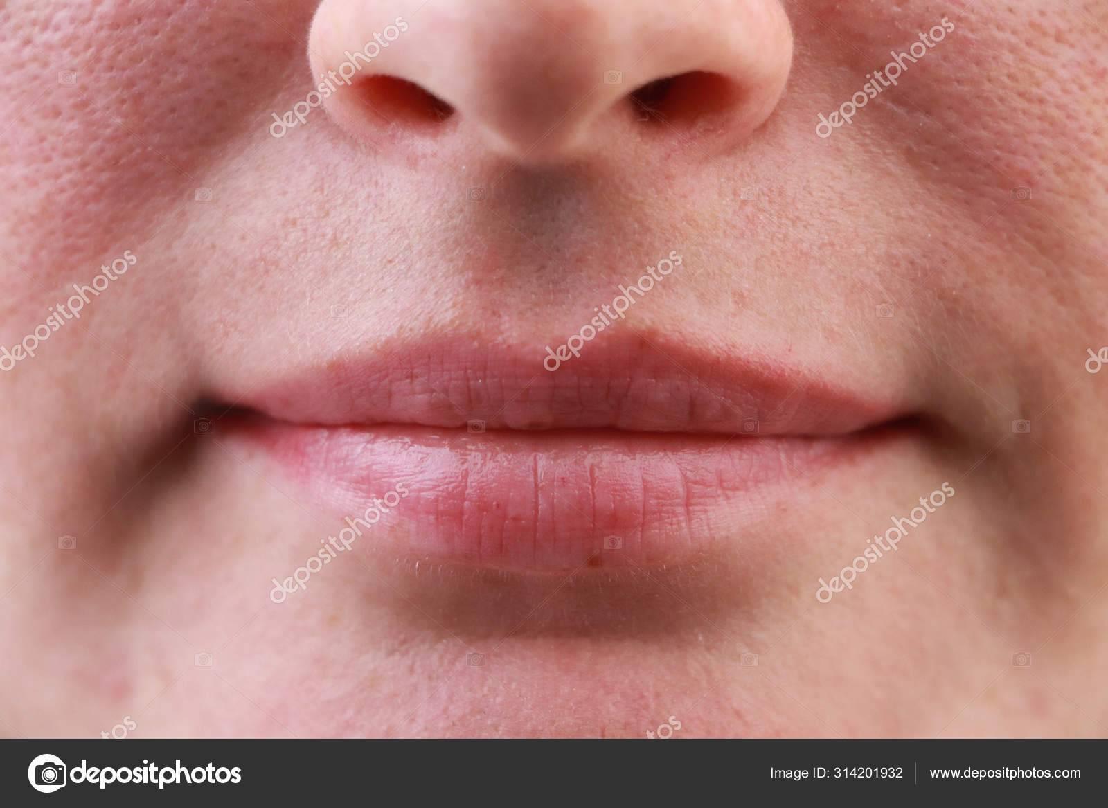 Что означает появление черного, синего или красного пятна на губе? распространенные причины пигментации