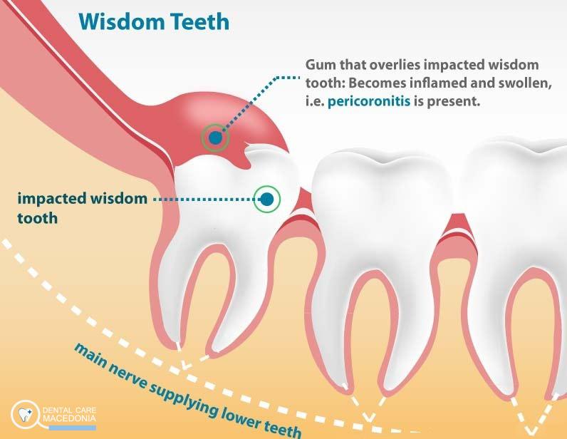 Если болит зуб мудрости