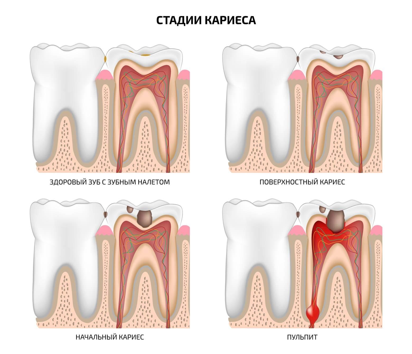 Кариес между зубами: симптомы и лечение