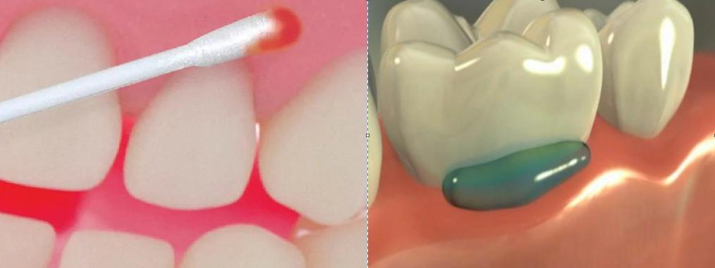 Противовоспалительные препараты после удаления зуба