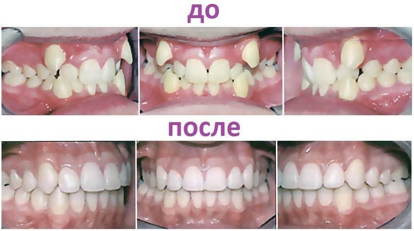 Поставить брекеты на один зуб: правда или вымысел