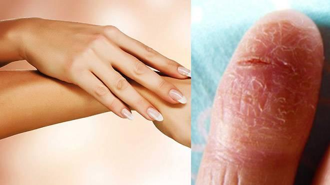 Причины и лечение раздражения, покраснения, опрелости под грудью