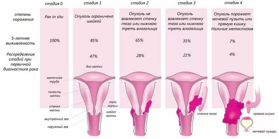 Лечение 1 стадии рака шейки матки. сколько живут после операции?