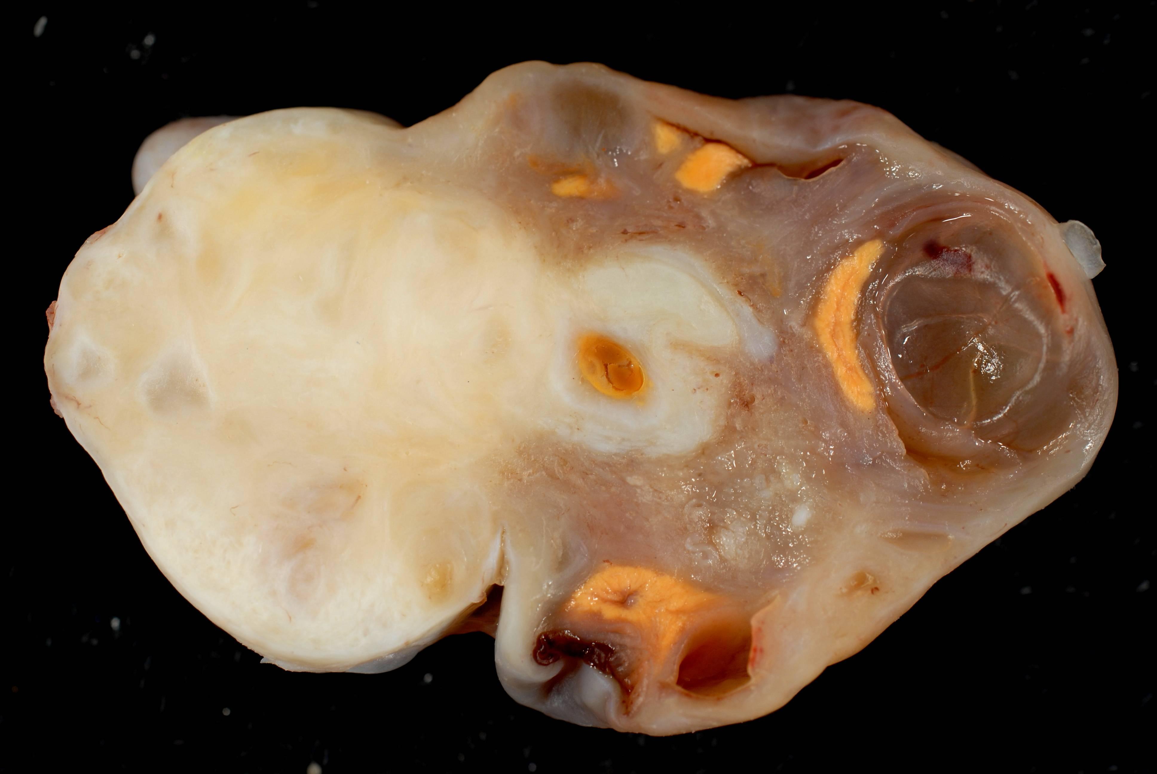 Виды тератом на яичнике и операции по удалению у женщин