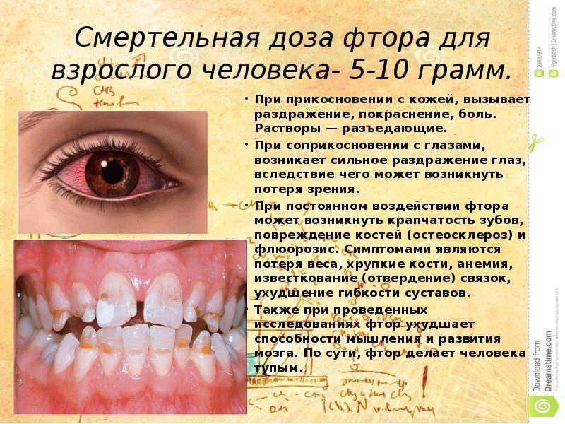 Польза и вред фтора для зубов. влияние фтора на зубы