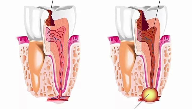 Пародонтальный абсцесс: причины и лечение заболевания