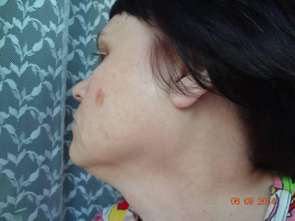Причины и лечение воспаления околоушных лимфатических узлов
