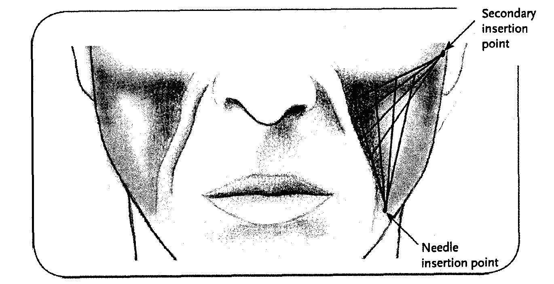 Коррекция углов нижней челюсти филлерами
