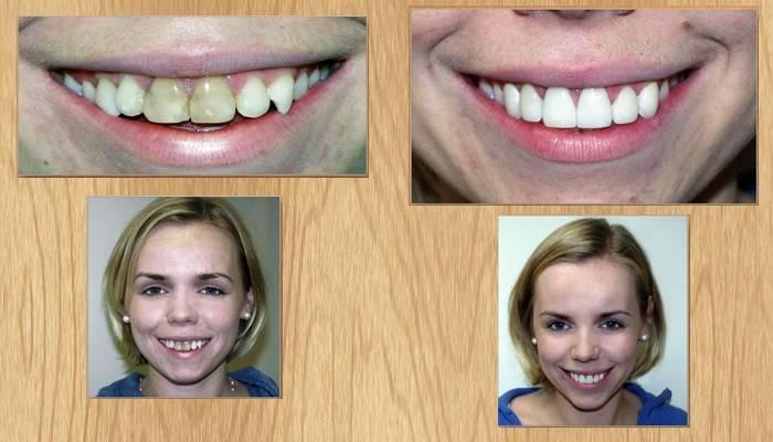 Можно ли виниры ставить на кривые зубы