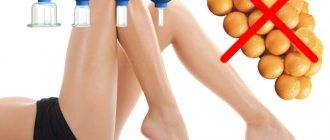 Ударно-волновая терапия при целлюлите