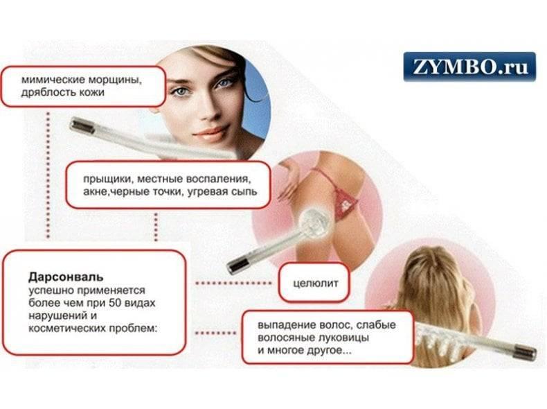 Эффективность процедуры дарсонваль при варикозе